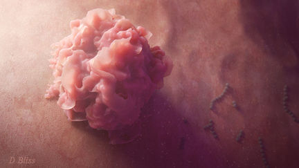 Dendritic Cell hunts Streptococcus