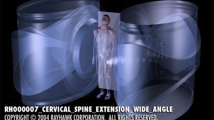RH000007_Cervical_Spine_Extension_wide_angle